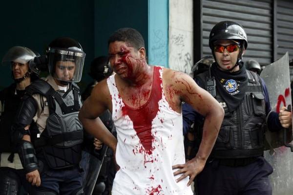 Một người biểu tình bị thương trong biểu tình tại San Cristobal, tỉnh bang Bolivar (Venezuela) ngày 19-4. Ảnh: REUTERS