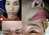Làm đẹp 'chui': Muôn vàn tai biến khóc cười