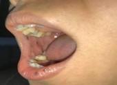Phát hiện bệnh hiếm từ miệng có nhiều nốt sậm màu