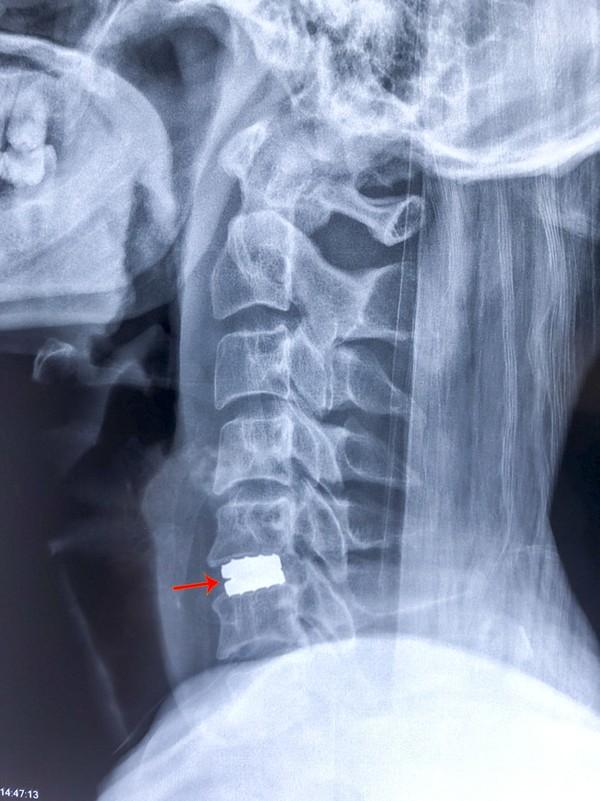 Hình ảnh trước và sau phẫu thuật thay đĩa đệm cột sống cổ 2