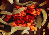 Biến đổi gen ở virus COVID-19 tương tự biến đổi ở HIV, Ebola