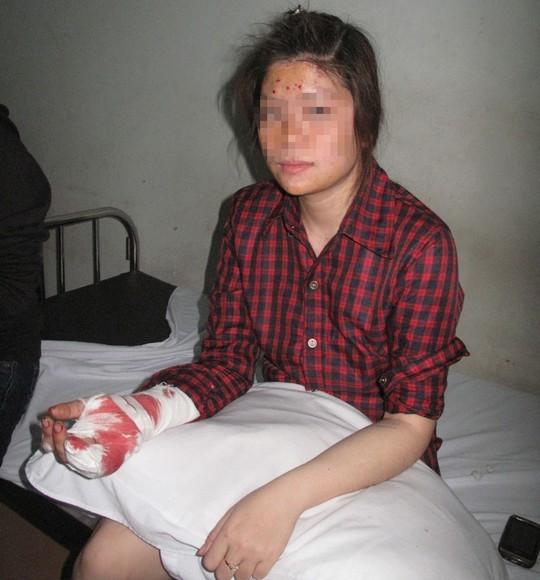 Chị H., nạn nhân của bưu phẩm phát nổ nhập viện với hàng chục viên chì trong người