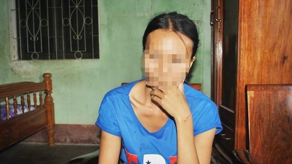 Chị Trương Thị Thanh Văn với những vết thương ở mặt và tay.