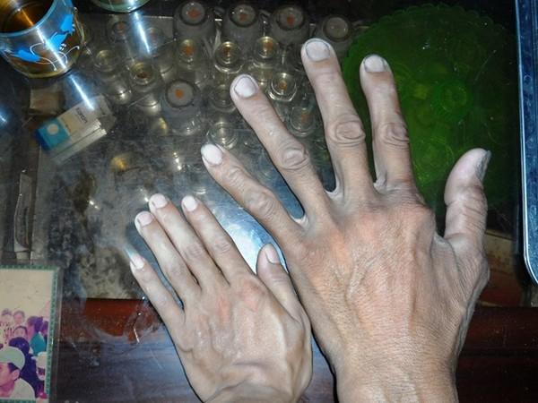 Bàn tay ông Chính to gấp đôi người bình thường