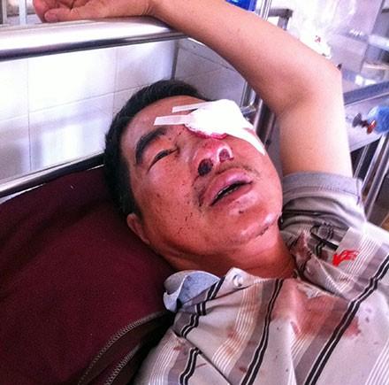 Ông Trương Triệu Lương bị ném đá gây hư mắt trái đang điều trị tại Bệnh viên Đa khoa tỉnh Đắk Lắk - Ảnh: Trung Tân