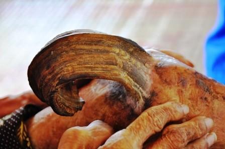 Chiếc sừng mọc giữa đầu gối chân trái của cụ Ngôn.
