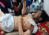 Bỏng nặng do điện giật, một người nhập viện nguy kịch