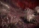 Hiểu đúng và phòng ngừa 'vi khuẩn ăn thịt người'