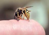 'Thầy lang' chữa bệnh bằng cách cho ong mật đốt làm chết người