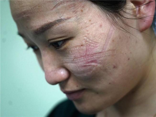 Vết khẩu trang hằn trên mặt một y tá đang chống dịch tại Vũ Hán. Ảnh: CHINA DAILY