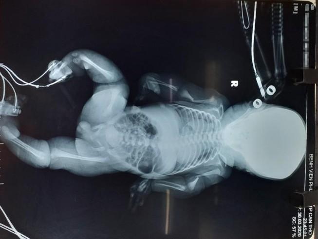 Em bé vừa sinh ra đã nghi mắc bệnh xương thủy tinh