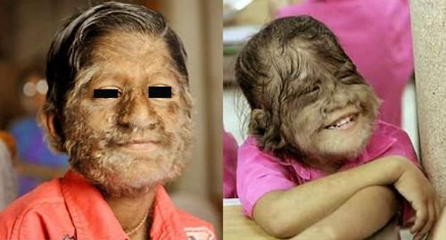 Những bệnh lạ lùng ở con người
