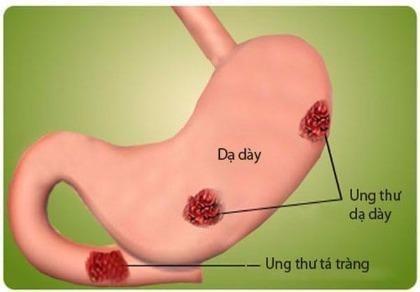 Nguyên nhân và cách phát hiện sớm ung thư dạ dày