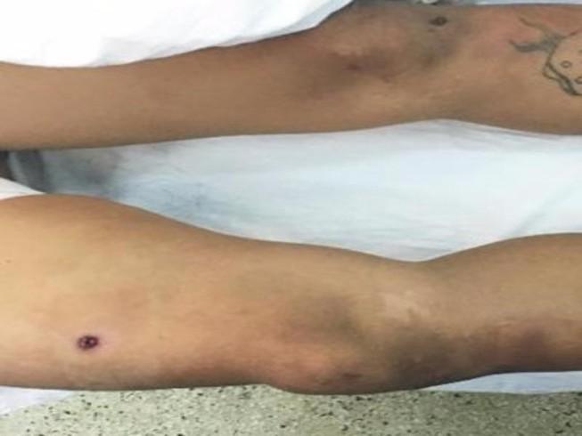 Thanh niên 'ngáo đá' bị bắn đạn cao su thủng đùi
