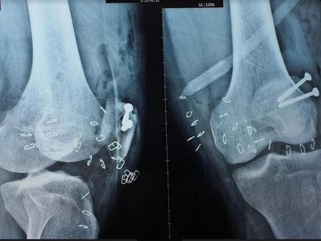 Người đàn ông bị chân vịt ca nô chém lộ xương chân