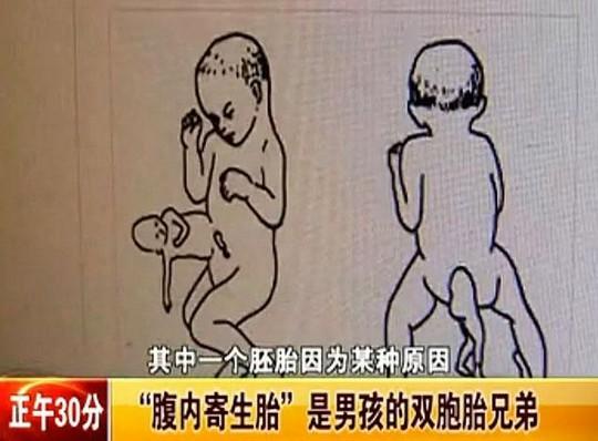 """Bé trai 2 tuổi """"mang thai"""" người anh em sinh đôi"""