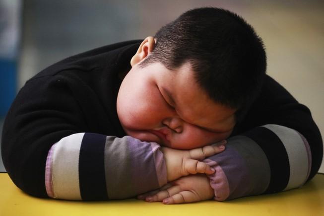 Nửa số trẻ béo phì toàn cầu là ở châu Á