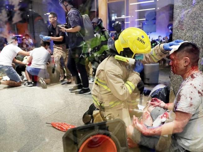 Hong Kong: Cãi vã chính trị, nhiều người bị đâm nguy kịch
