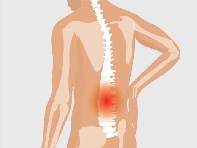 Cảnh báo viêm khớp cột sống gây tàn phế người trẻ