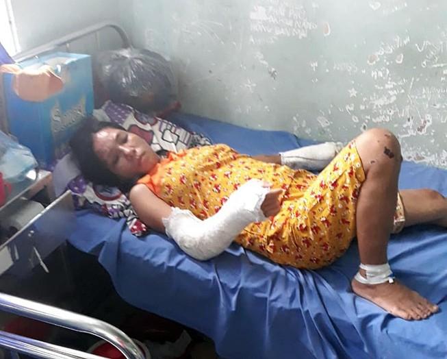 Phẫn nộ: Vợ có thai bị chồng đánh gãy tay chân, vỡ nền sọ