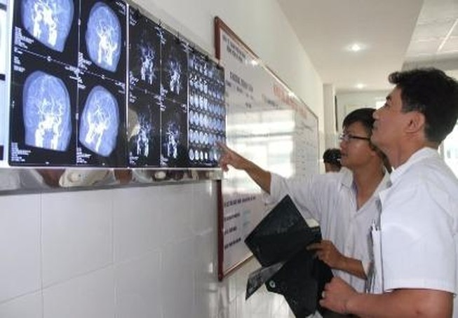 Cứu sống bệnh nhân bị đột quỵ não, liệt toàn thân