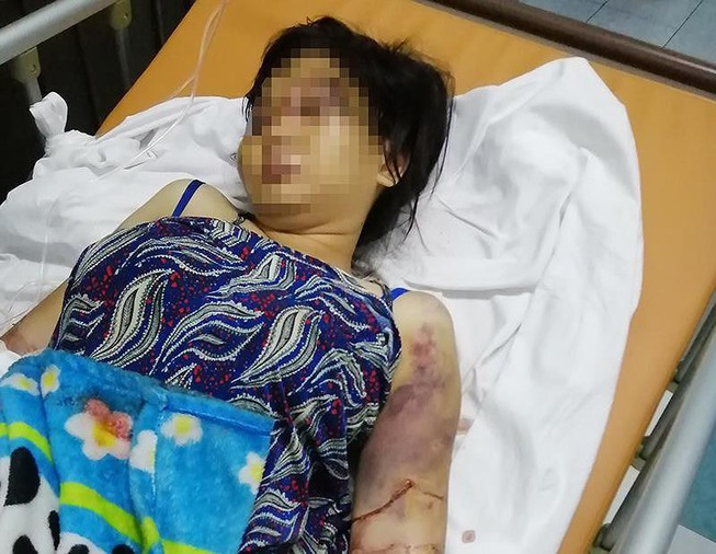 Vụ tra tấn cô gái ở Bình Chánh: Khởi tố nghi can cầm đầu