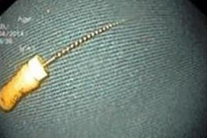 Cây kim sắc nhọn đã được lấy ra khỏi dạ dày cháu bé. (Ảnh: Bệnh viện Nhi Trung ương cung cấp)