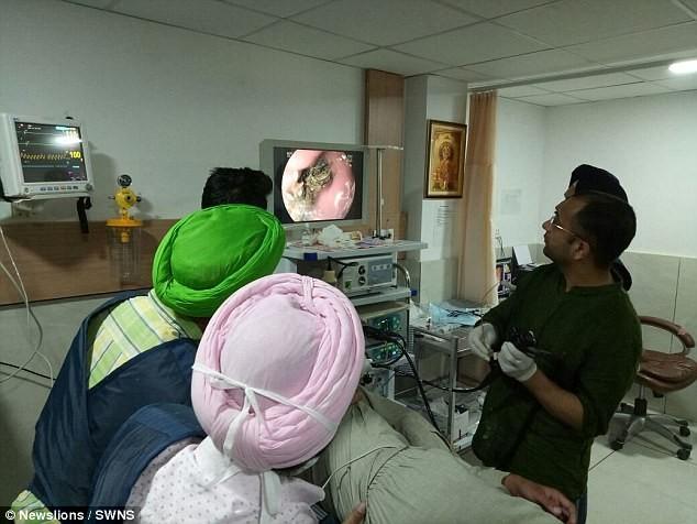 Phát hoảng vì bệnh nhân có 1 kg gỗ, nhựa trong người - ảnh 2