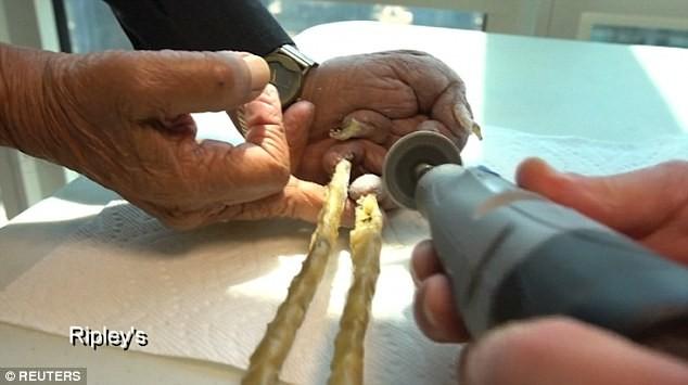 Quyết định cắt bỏ bộ móng tay đã nuôi dài 66 năm - ảnh 5