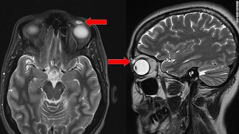 Tìm thấy kính áp tròng thất lạc trong mí mắt sau 28 năm - ảnh 2