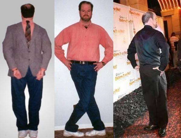 Dị nhân sở hữu đôi chân có thể quay 180 độ - ảnh 2