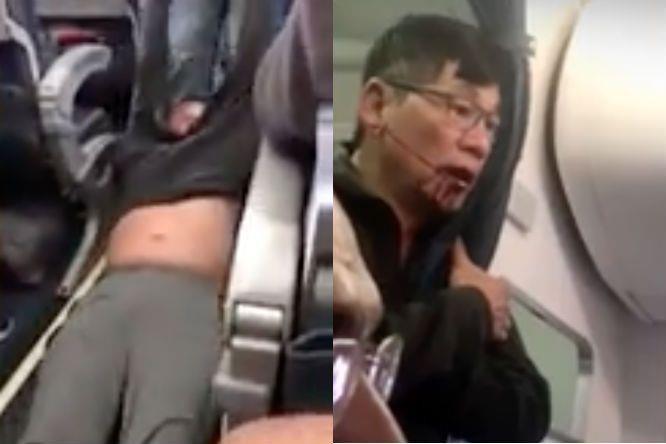Bác sĩ David Dao lần đầu lên tiếng sau vụ bị lôi trên máy bay - ảnh 2