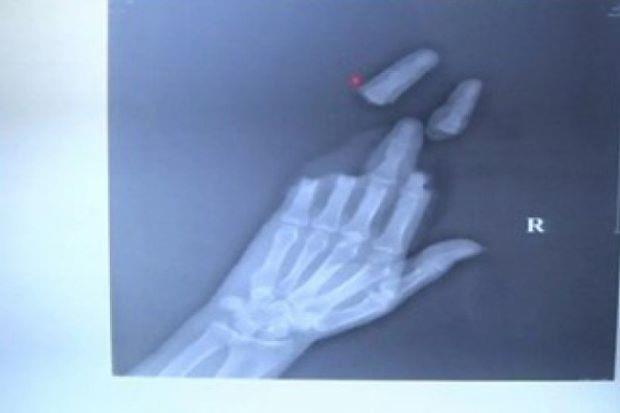 Người đàn ông mất 3 ngón tay vì thả diều - ảnh 1