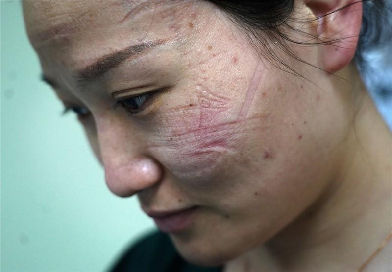 Bác sĩ Vũ Hán mặt hằn vết khẩu trang, đóng tã khi làm việc - ảnh 1
