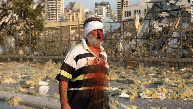 Nổ ở Lebanon: Giống tận thế - ảnh 2