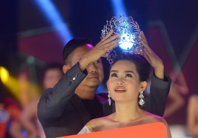 Tân Hoa hậu Đại dương phẫu thuật thẩm mỹ, xử sao? - ảnh 3