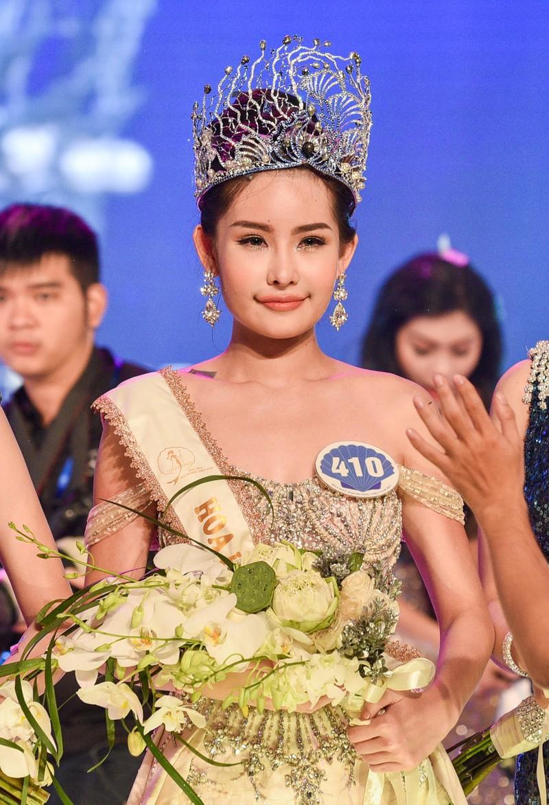 Tân Hoa hậu Đại dương phẫu thuật thẩm mỹ, xử sao? - ảnh 1
