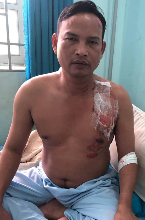 Đồng Nai: Giang hồ xông vào quán cà phê rút dao đánh người - ảnh 1