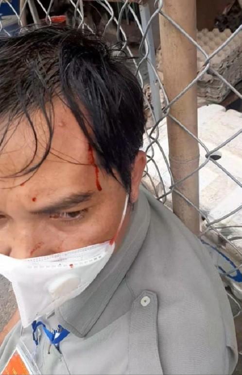 Nguyên nhân vụ dân quân, bảo vệ dân phố đánh đập người dân ở Đồng Nai  - ảnh 2