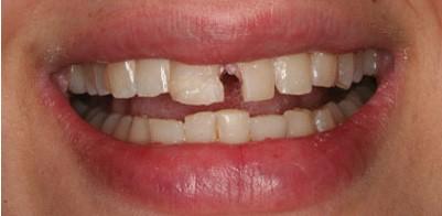 Răng tự nhiên bị mẻ là bị bệnh gì?   Sức khỏe   PLO
