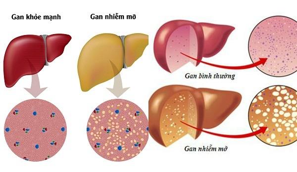 Gan nhiễm mỡ - Bệnh thời hiện đại - ảnh 1