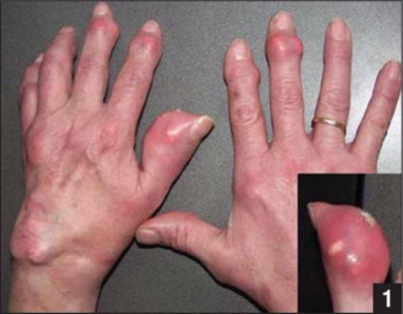Người bệnh gút dùng thuốc cần đề phòng các yếu tố nguy cơ khiến bệnh nặng hơn.