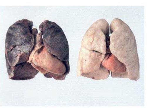 Những dấu hiệu 'tố' bệnh ung thư phổi - ảnh 2