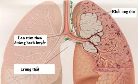 Những dấu hiệu 'tố' bệnh ung thư phổi - ảnh 1
