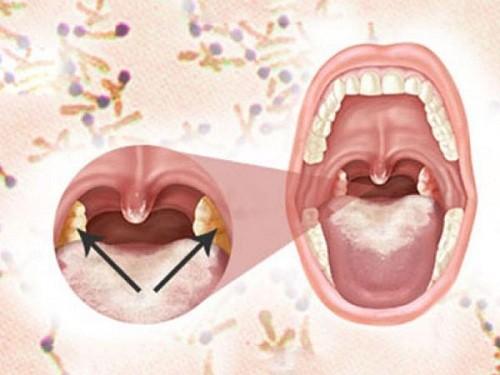 Những biến chứng nguy hiểm của bệnh bạch hầu - ảnh 1