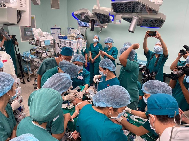 Ca phẫu thuật tách cặp Song Nhi xác lập kỷ lục Việt Nam - ảnh 4