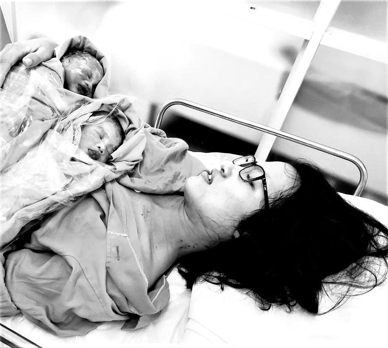 Kỳ tích giành sự sống cho song thai siêu non tháng - ảnh 1