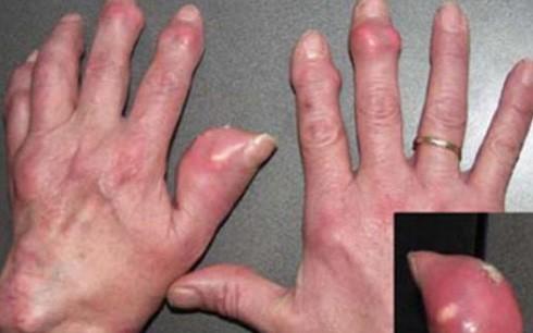 Bị bệnh gout nên ứng phó thế nào? - ảnh 1