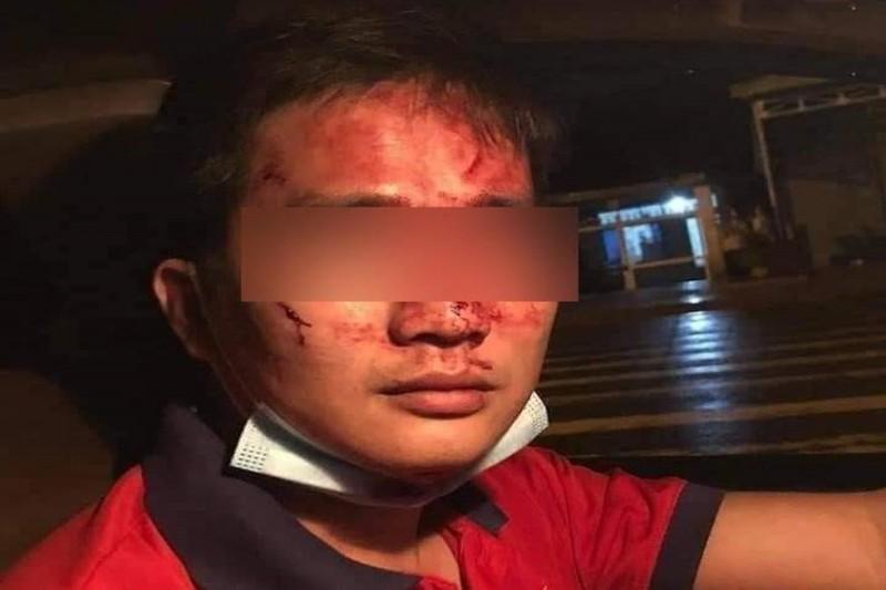 Công an truy tìm người đàn ông hành hung tài xế, gây phẫn nộ trên mạng xã hội - ảnh 2