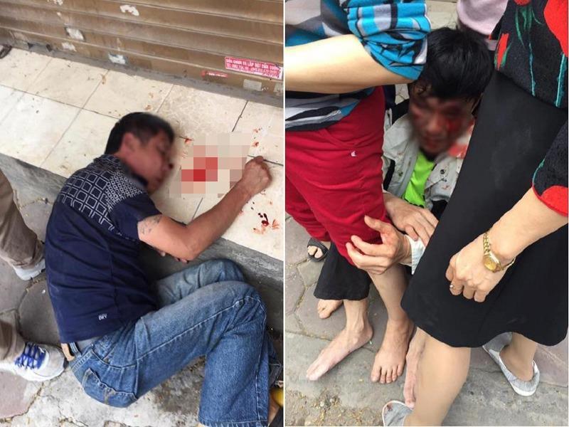 Bị người dân đánh nhập viện vì tưởng nhầm là trộm xe - ảnh 1